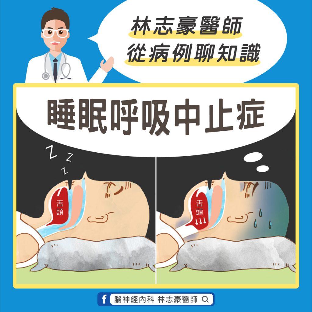 睡眠呼吸中止症